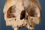 3-4 jähriges Kind bestattet im Galeriegrab von Niedetiefenbach