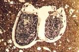 Mikroskopische Aufnahme eines Keramikfeinschliffes