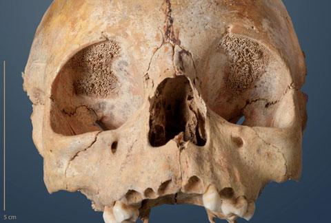 Foto eines Schädels eines 3-4-jährigen Kleinkindes, welches im Wartberg-Galeriegrab von Niedertiefenbach begraben wurde