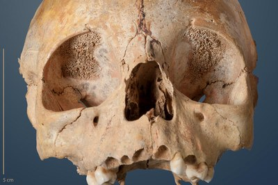 Scull of a Child