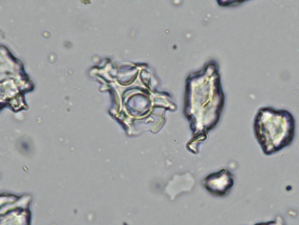 Mikroskopische Aufnahme von Partikeln